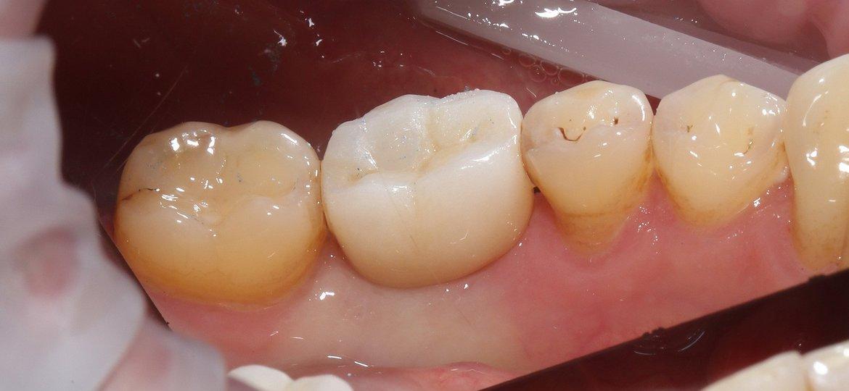 имплантация на нижних жевательных зубах фото после