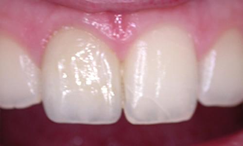 композитная коронка на передний зуб фото 2