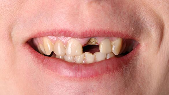 частная стоматология в Одессе