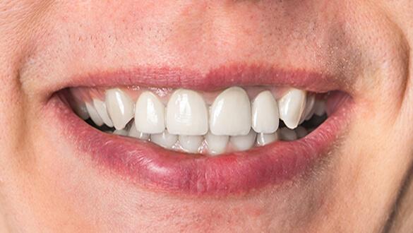 коронка на зуб фото после