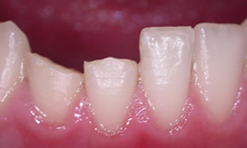 реставрация зубов фото до и после -1