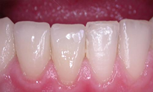 реставрация зубов фото до и после -2