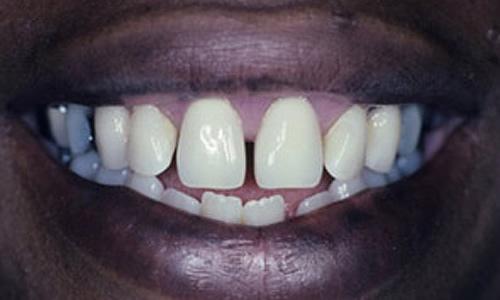 съемный частичный протез на передний зуб