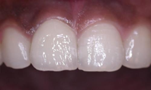 зубной имплант фото после