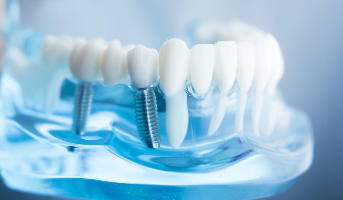 протезирование зубов в Одессе фото