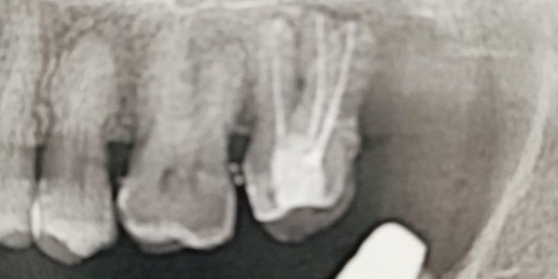 зубные коронки рентген одесса фото