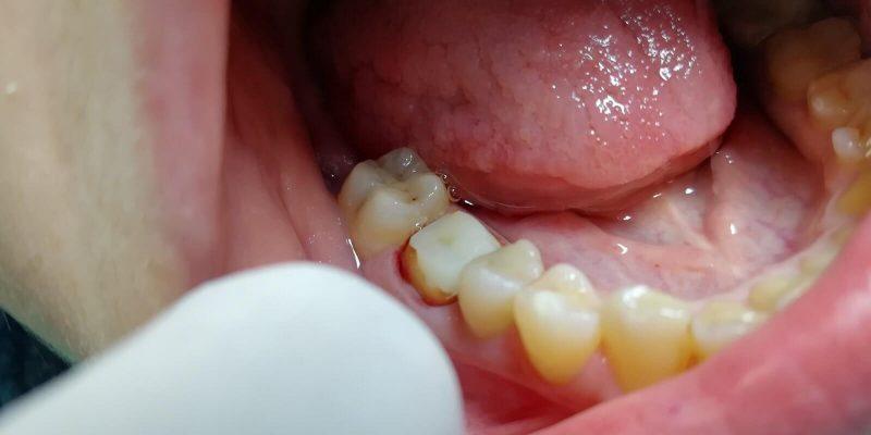 цена установки коронки на 1 зуб фото